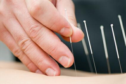 Kingscliff Acupuncture  Massage